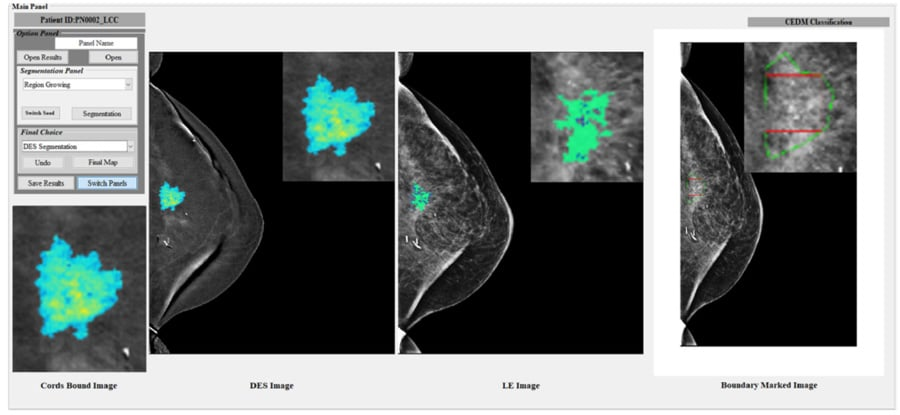 Assessing performances of Computer-Aided Diagnosis of breast cancer - Research Outreach